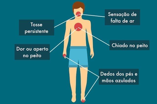 Sinais e sintomas de Enfisema Pulmonar