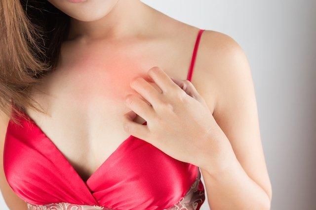 O que é urticária colinérgica e como tratar