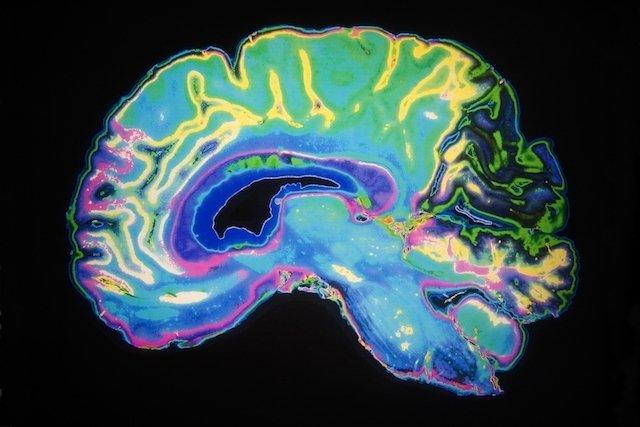 10 Sinais de Alerta para a Doença de Alzheimer