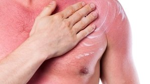 How to treat 1st, 2nd and 3rd degree burns