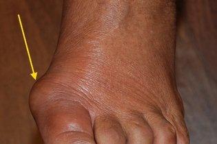 Sinais inflamatórios devido artrite reumatoide