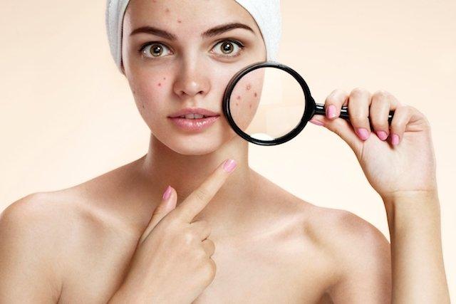 Anticoncepcional para acne