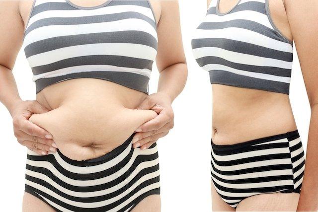 Antes e depois da abdominoplastia reparadora