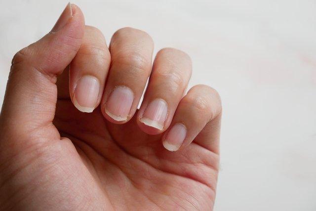 5 dicas para fortalecer as unhas fracas