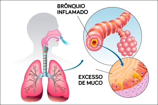 Brônquio inflamado e excesso de muco estão relacionados à Asma