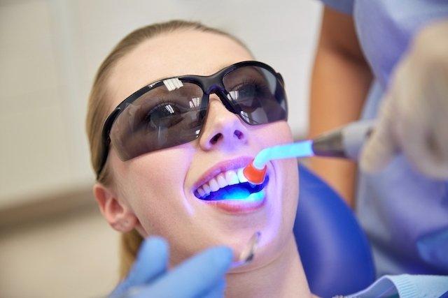 O que é o piercing dental e como colocar