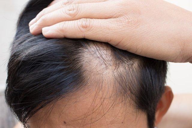 O que é a alopécia, principais causas e tratamento