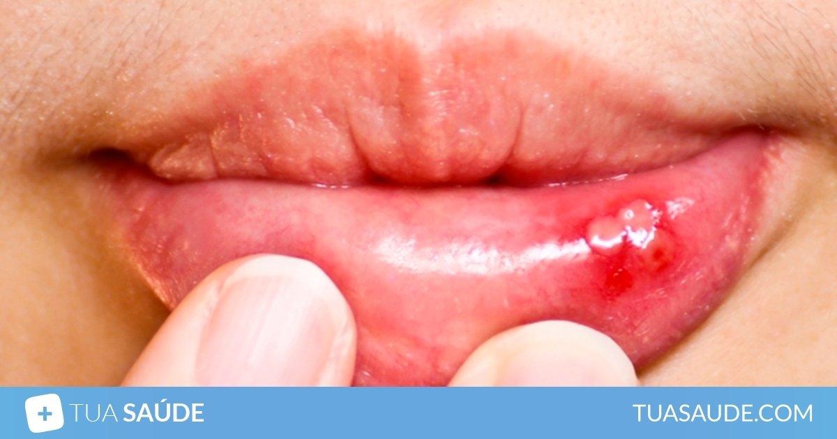 remedio caseiro para afta na boca com bicarbonato