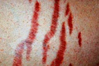 Estrias vermelhas características da Síndrome de Cushing