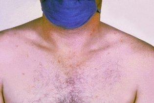 O que é Febre tifoide