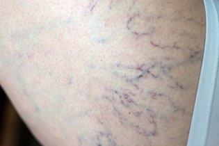 O que causa Vasinhos na perna e o que fazer