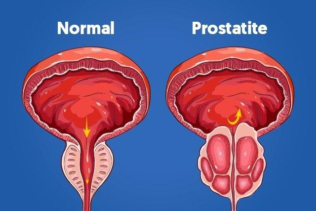 prostata inflamada tratamento