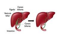 Hemangioma hepatico dieta