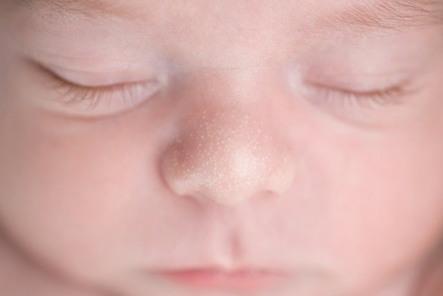 Milium no recém-nascido