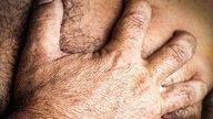 Causas de dolor en la mama del hombre