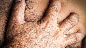 síntomas y remedios agrandamiento de la próstata y el cordón espermático
