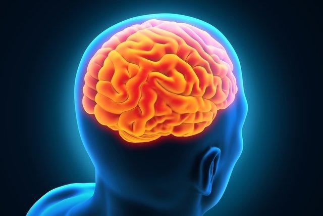 O que é cisto aracnóide e quais os sintomas