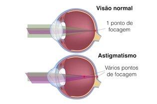 Olho no astigmatismo