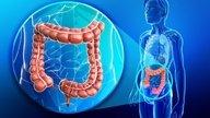 Tratamento para curar o câncer de intestino