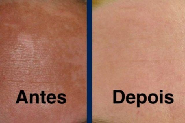 Tratamento de melasma com peeling químico