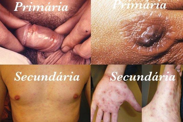 Fotos da Sífilis