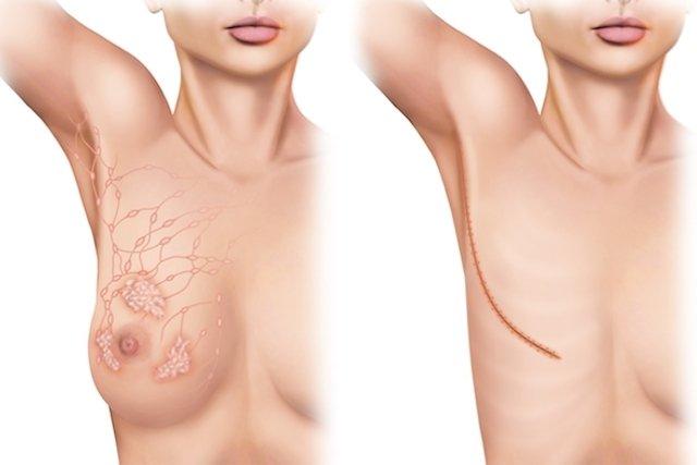 5 tipos principais de mastectomia e como são feitos