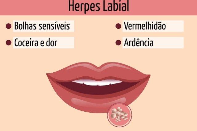 Principais sintomas de herpes na boca.