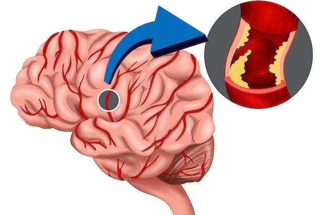 Obstrução de vaso no cérebro