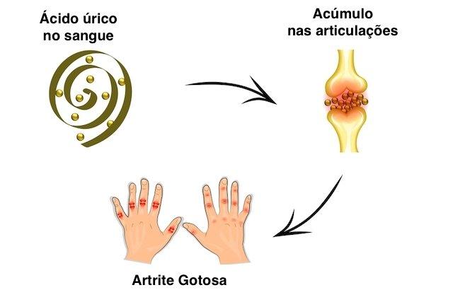 medicamentos para combatir la gota el acido urico produce dolor en las rodillas remedios eficaces para el acido urico