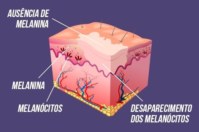 O que causa vitiligo e como tratar