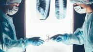 Cirugía de hernia discal: cómo se realiza, riesgos y recuperación