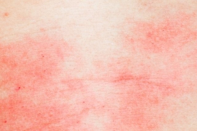 Dermatitis: Qué es, tipos y cómo tratar