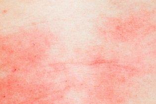5. Dermatite alérgica