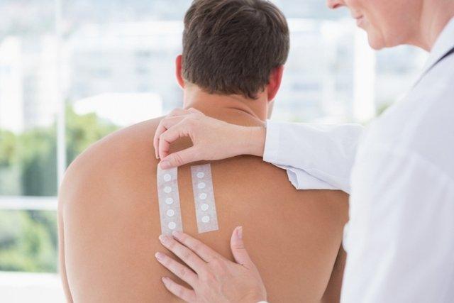 Teste de alergia nas costas