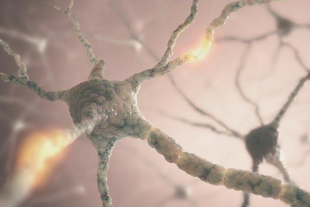 O que é e como tratar a encefalite autoimune