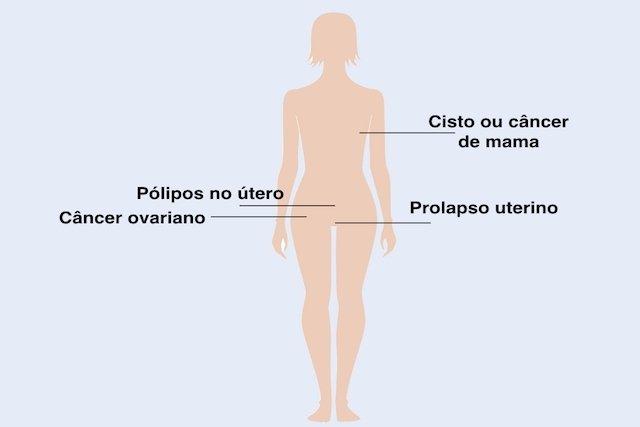 4 Doenças que podem surgir na Menopausa