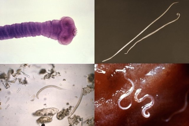 gusanos parásitos en el intestino humano