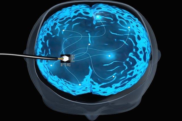 7 doenças tratadas pela estimulação cerebral profunda