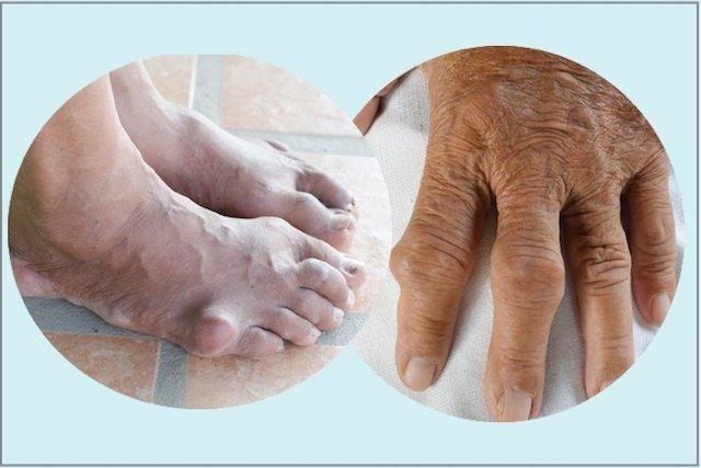 Ácido Úrico - Sintomas, Exames e Como Baixar