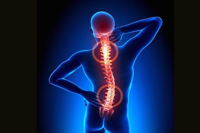 Espondiloartrose: o que é, sintomas e tratamento