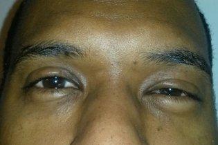 Aumento do inchaço e dificuldade para abrir os olhos