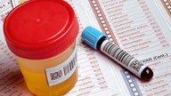 Examen de cortisol: Tipos, valores y cómo preparase