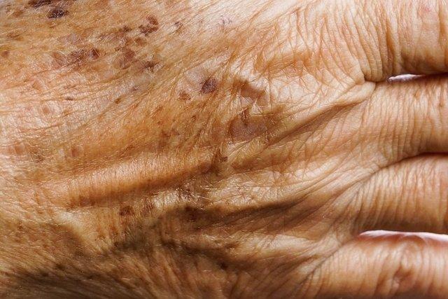 8 tipos de manchas de pele mais comuns (e como tirar)