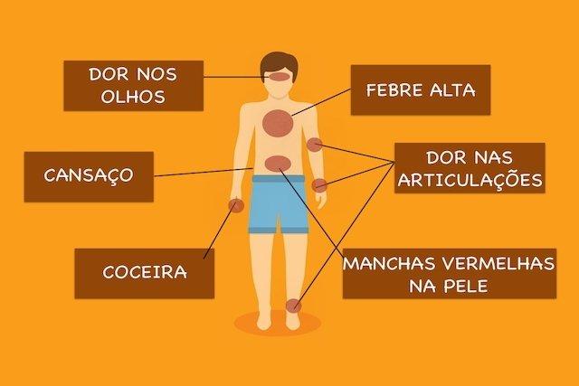 Resultado de imagem para chikungunya sintomas