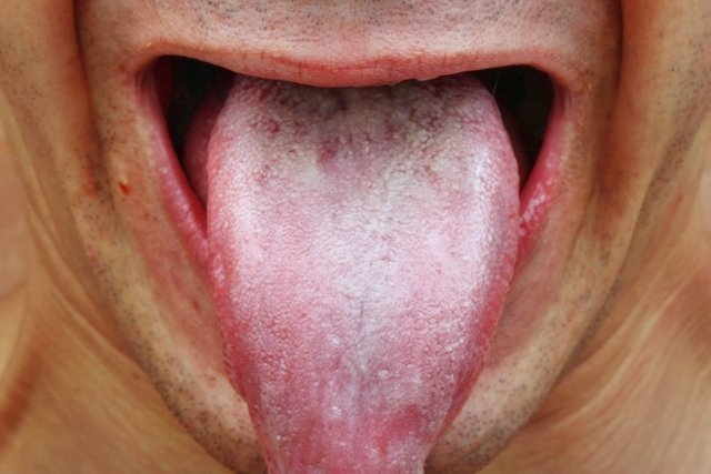 O que é a leucoplasia e como tratar