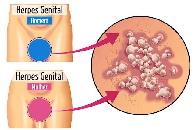 Veja como identificar os sintomas da Herpes Genital
