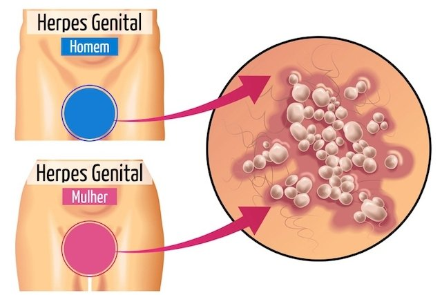 Herpes peniana sintomas fotos