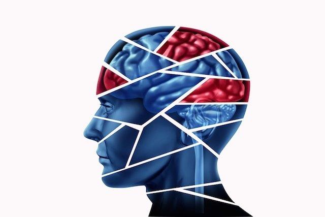 O que é Traumatismo craniano
