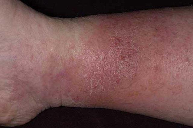 dermatitis seborreica en las piernas