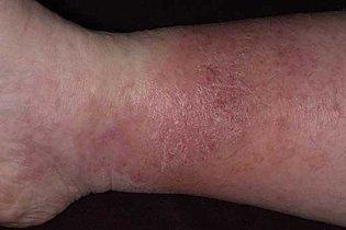 4. Dermatite ocre